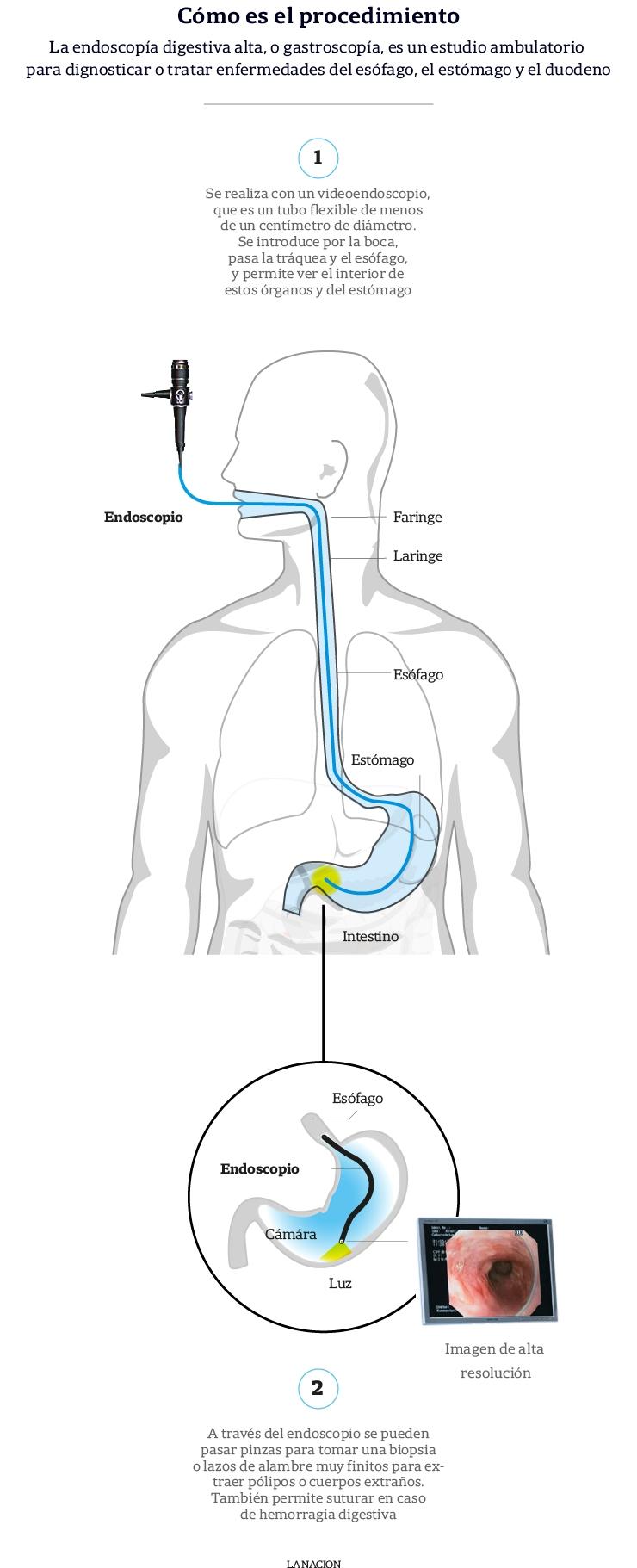 que es una endoscopia digestiva